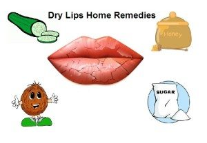 get-rid-of-dry-lips-naturally