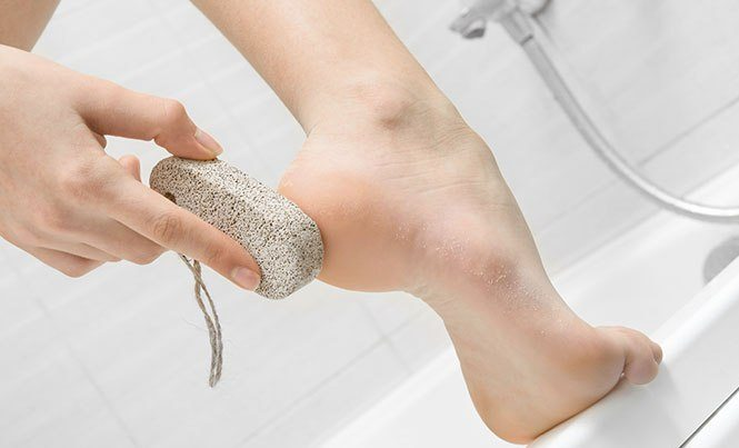 cracked heels treatment #11