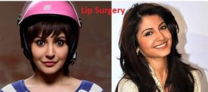 anushka-sharma-plastic-surgery-before-and-after-pics