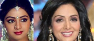 bollywood-actress-plastic-surgery-before-and-after