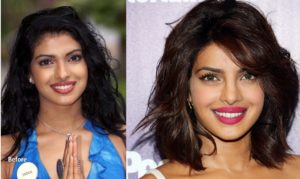 priyanka-chopra-before-and-after-plastic-surgery-pics