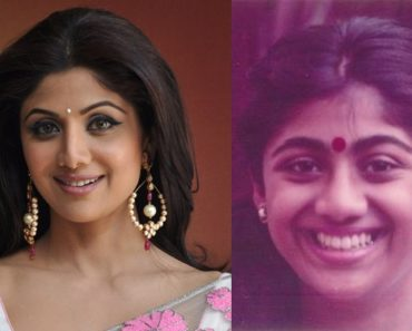 shilpa-shetty-plastic-surgery-before-and-after-pics